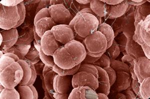 Halococcus salifodinae